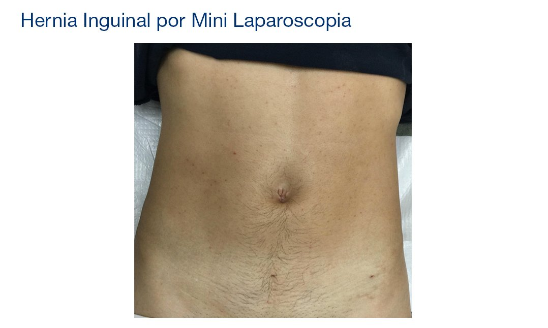 Mini Laparoscopia